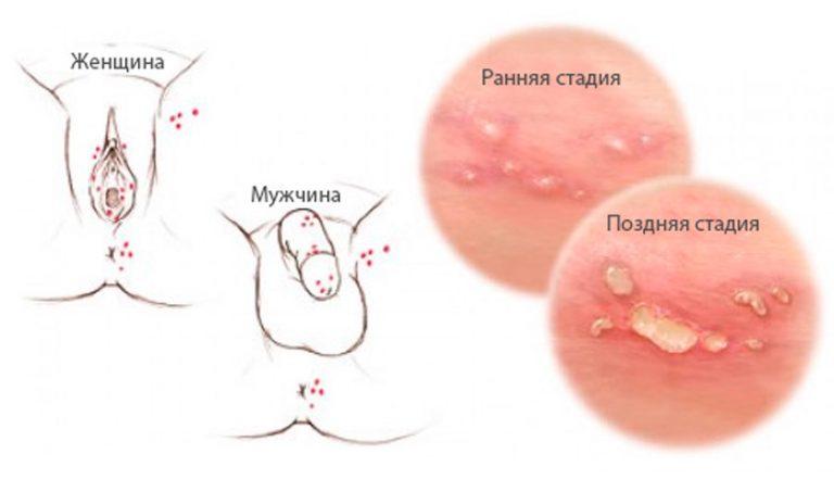 Вирус герпеса: возбудители, симптомы, причины и лечение